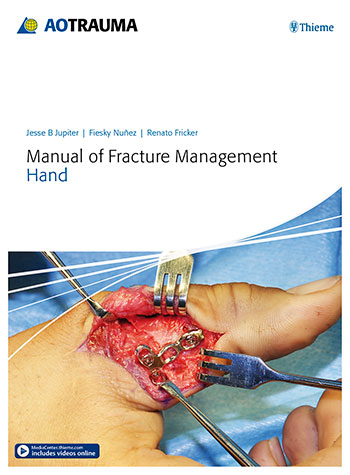 Manual of Fracture Management—Hand