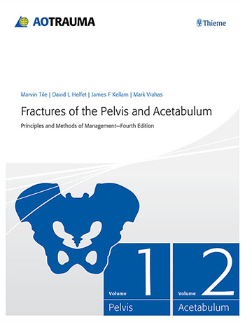 Fractures of the Pelvis and Acetabulum: Principles and Methods of Management
